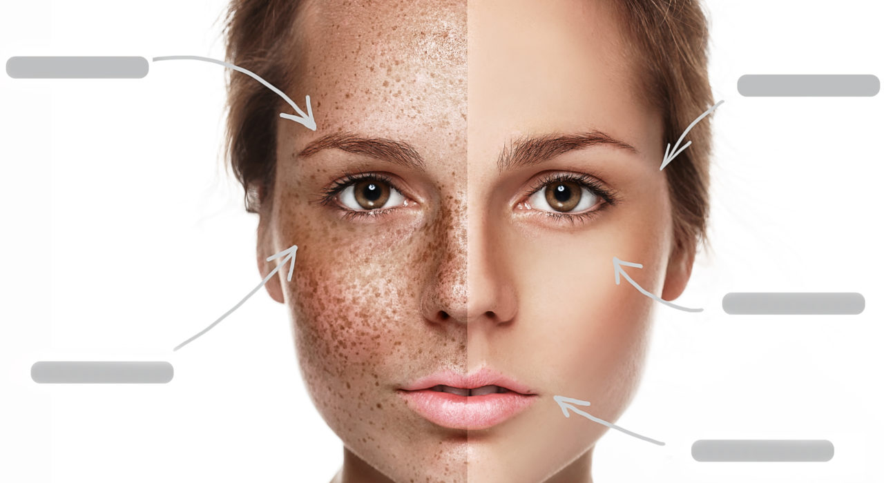 Pigmentation Is The New Wrinkle Laser Amp Skin Clinic