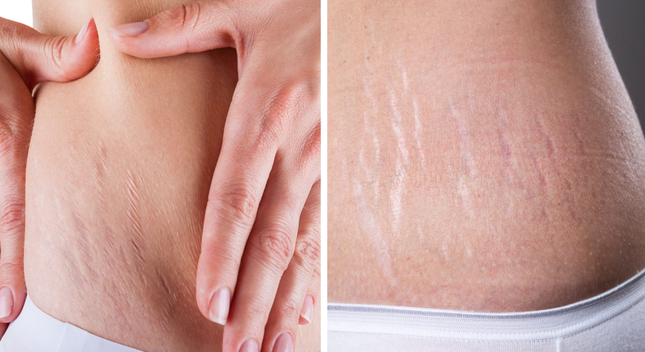 how to clear stretch marks